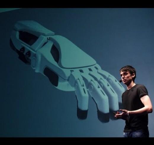 Бионика – способ восстановить возможности человеческого тела